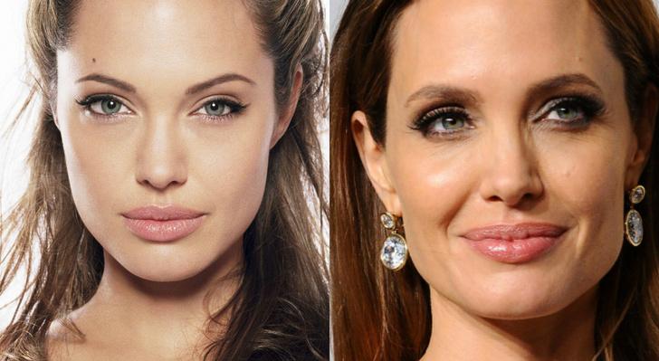 Анджелина Джоли до после