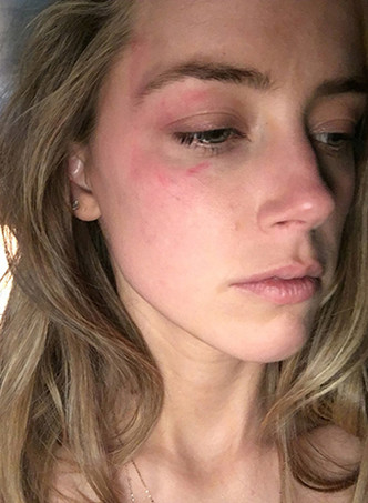 Эмбер Херд обвиняет Джонни Деппа в домашнем насилии