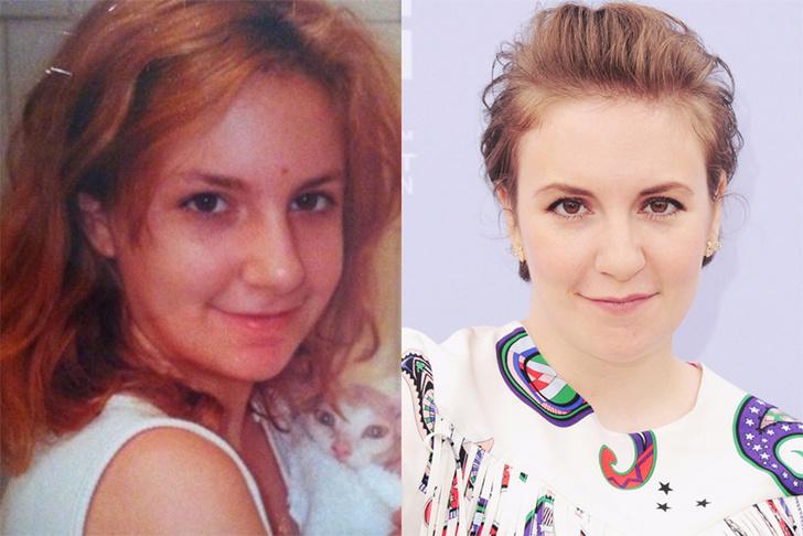 #PuberMe: голливудские звезды показали подростковые фотографии фото [24]