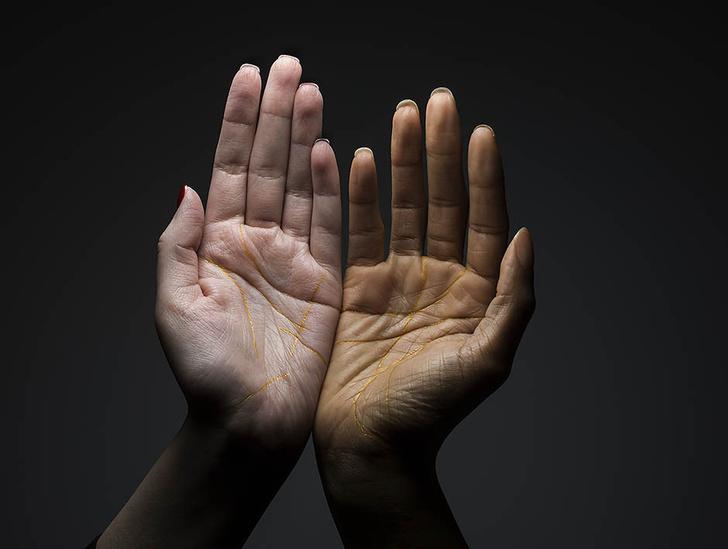 Что руки говорят о вашем здоровье? фото [4]