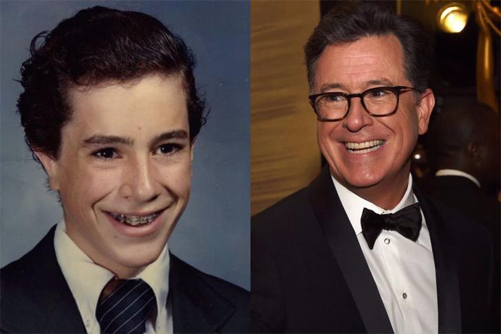 #PuberMe: голливудские звезды показали подростковые фотографии фото [21]