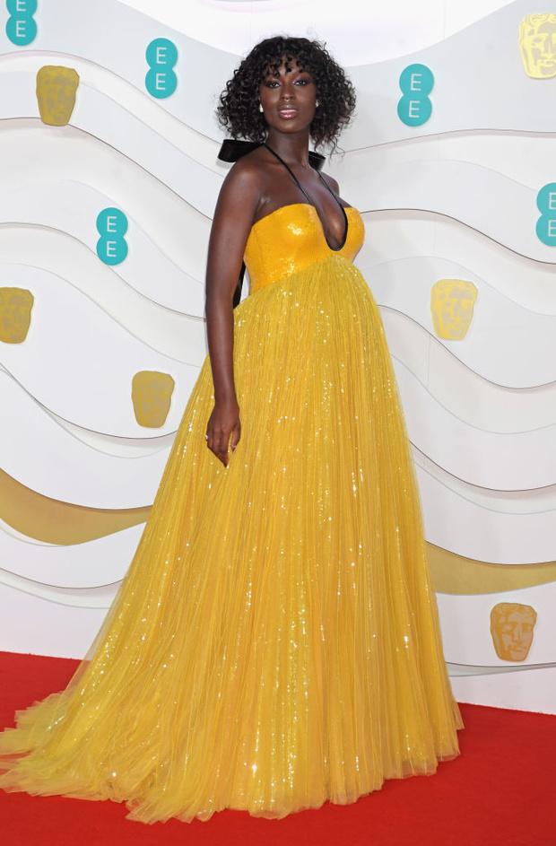 Самое яркое платье церемонии BAFTA: Джоди Тёрнер-Смит в Gucci (фото 4)